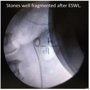Xray of ESWL after